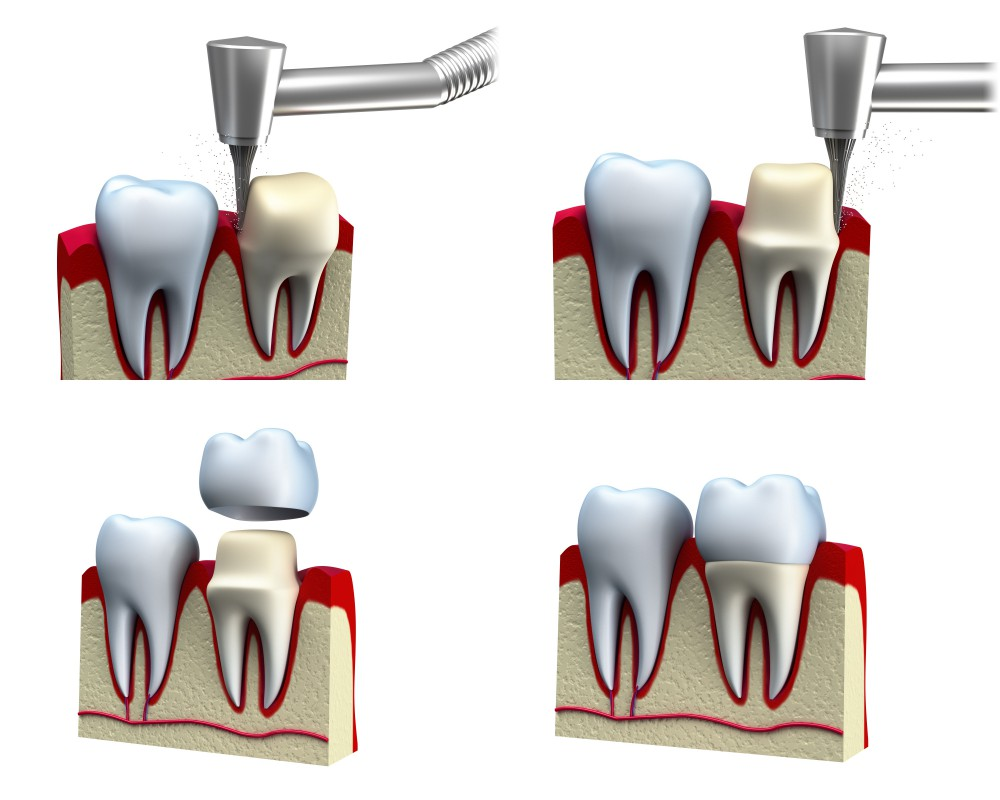 14453294_xxl-Dental crown installation process