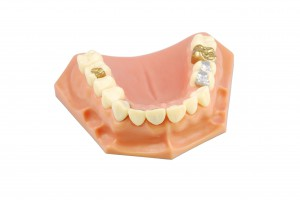 6795854_xxl- gold crown, porcelain veener, gold inlays, amalgam and composite fillings